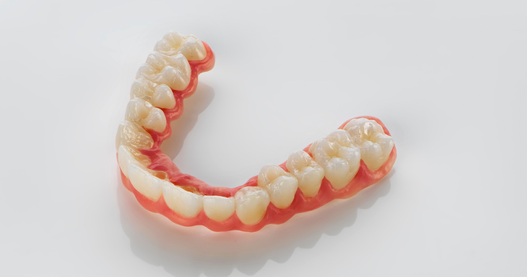 4 tips on processing long-span, implant-supported zirconia bridges